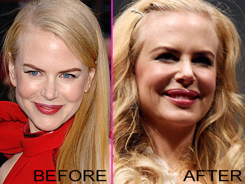 Nicole_Kidman_Plastic_Surgery_before_after